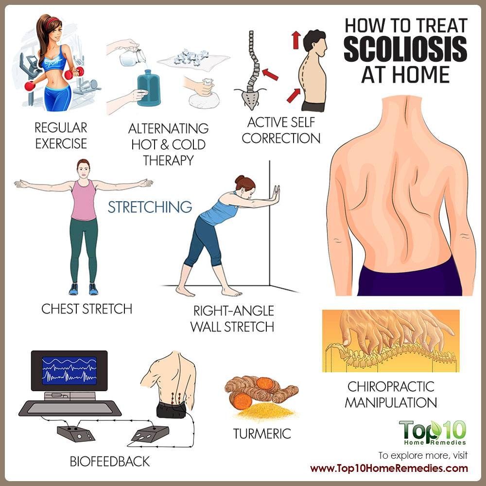 physical therapy for scoliosis pdf